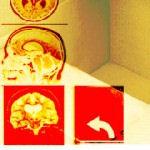 אימון גלי מוח